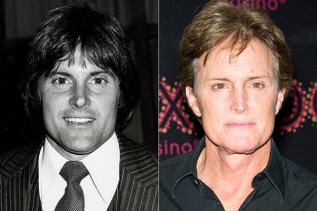 Bruce Jenner's plastic surgery, before and after
