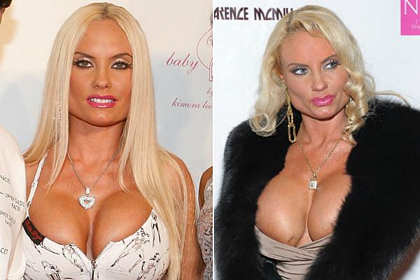 Celebrity boob implants what