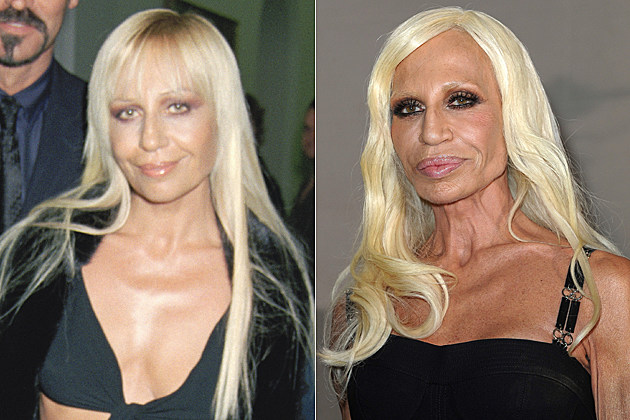 Donatella Versace's plastic surgery, before and after