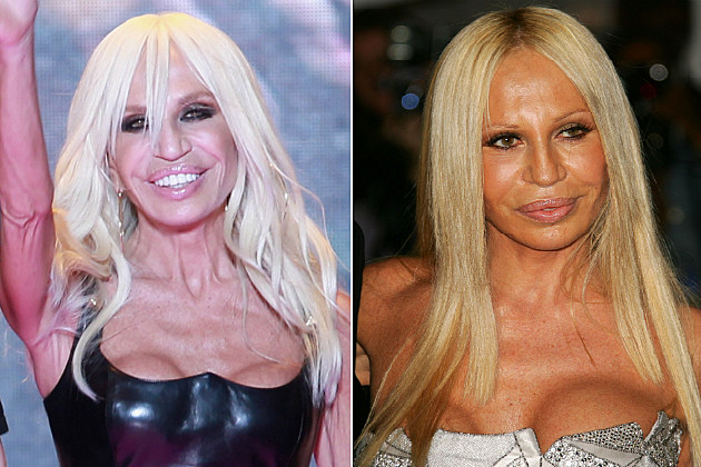 Donatella Versace bad boob job