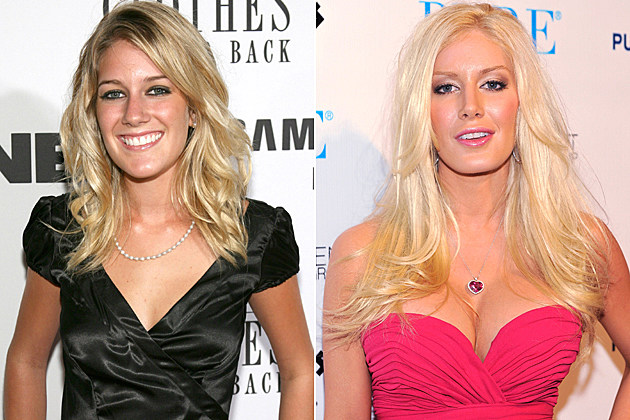 Heidi Montag's plastic surgery, before and after
