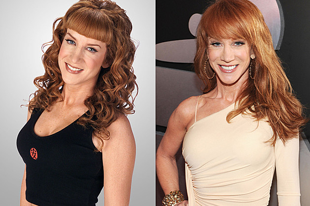 Kathy-Griffin-plastic-surgery