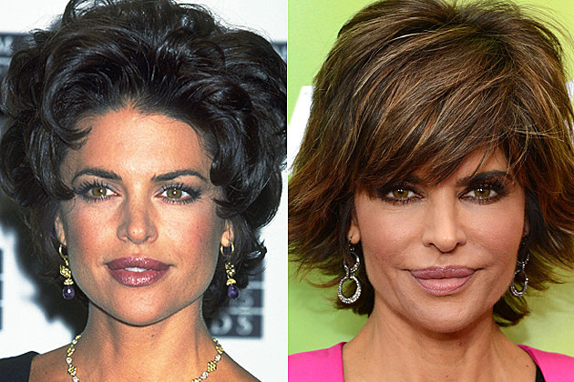 Lisa-Rinna-plastic-surgery