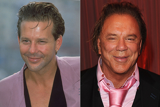 Mickey-Rourke-plastic-surgery