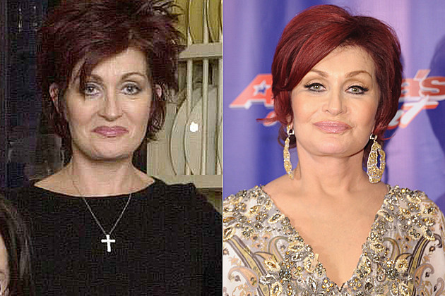 Sharon Osbourne's plastic surgery, before and after