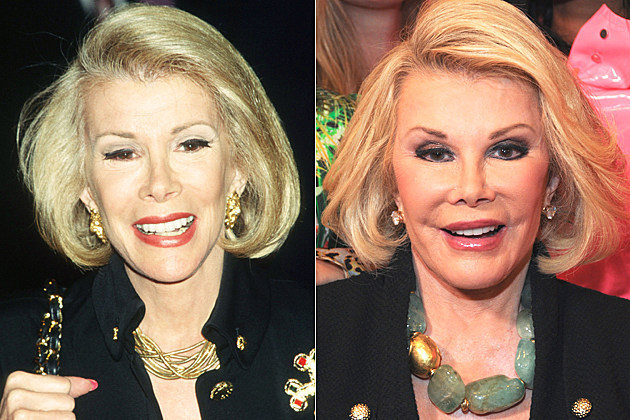 Joan Rivers' plastic surgery, before and after