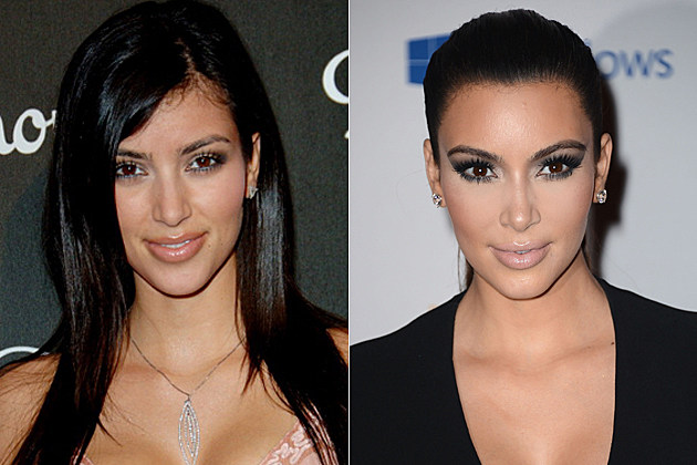Kim Kardashian's plastic surgery, before and after